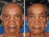 Wpływ palenia na starzenie twarzy