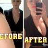 Insta Breast – 24-godzinne implanty do piersi