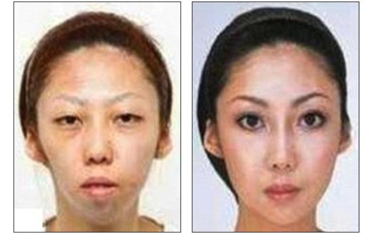 Żona Fenga przed i po operacji