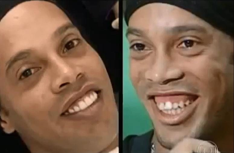 Ronaldinho zmienił zęby