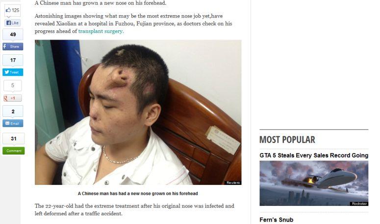 Chińczyk z nosem na czole