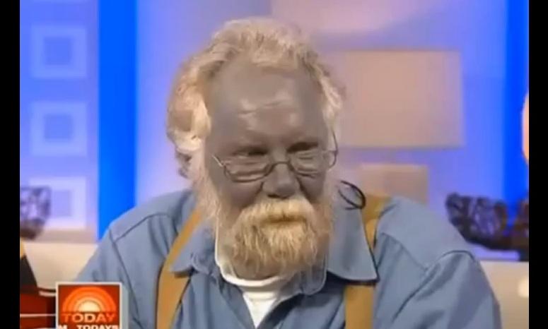 Paul Karason - człowiek z niebieską twarzą