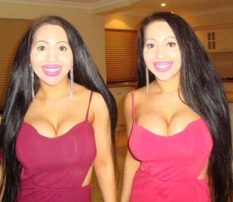 Anne i Lucy - bliżniaczki nierozłączki  z Australii