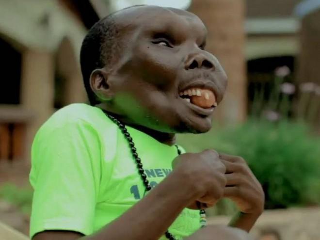 Godfrey Baguma - najbrzydszy mężczyzna świata
